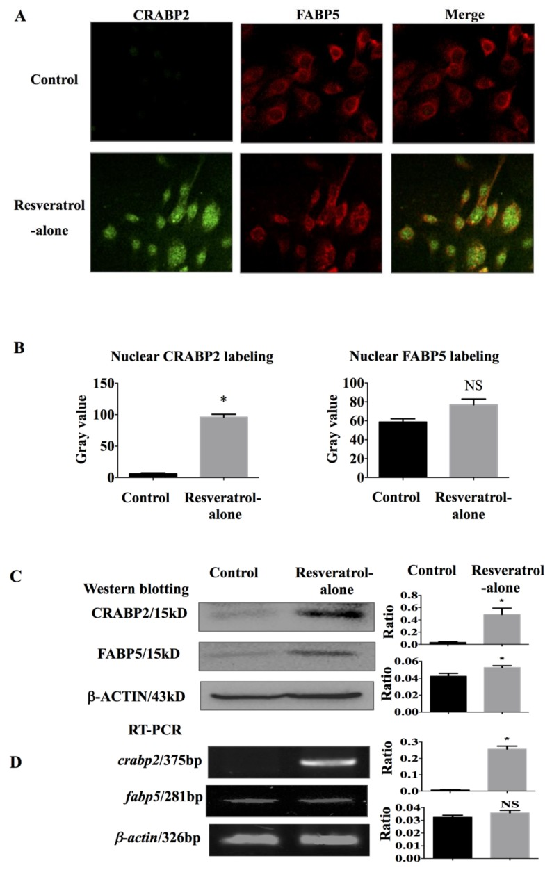 Differential expression of CRABP2 and FARP5 in THJ-11T cells in the absence or presence of 100 µM resveratrol. ( A ) Double immunofluorescent labeling (×40); ( B ) ImageJ (Version 1.0, National Institutes of Health, Bethesda, MD, USA)-based quantification of nuclear labeling of CRABP2 and FABP5; ( C ) Western blotting; ( D ) RT-PCR. Control, 0.2% DMSO-treated cells; Resveratrol-alone, 100 µM resveratrol treatment; Ratio, ratio between the levels of the target molecules and that of β-ACTIN/ β-actin ; *, with statistical significance ( p