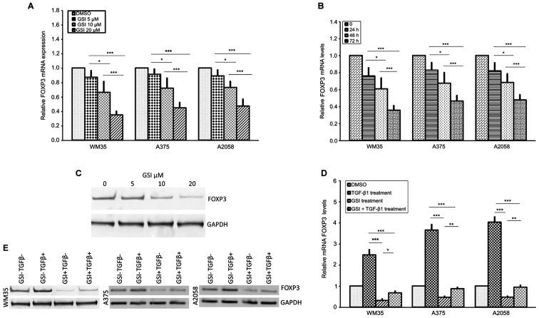 Effect of GSI on FOXP3 expression in melanoma cell lines. (A) Inhibition of FOXP3 mRNA is shown after 72 h of 5-, 10- and 20 μ M GSI treatment in melanoma cells. RT-qPCR shows that FOXP3 mRNA levels were downregulated in GSI-treated WM35, A375 and A2058 melanoma cells in a dose-dependent manner. Maximum inhibition of FOXP3 was observed at 20 μ M of GSI. (B) Inhibition of FOXP3 mRNA after 24, 48 and 72 h with 20 μ M/GSI treatment in WM35, A375 and A2058 melanoma cell lines. A statistically significant time-dependent decrease in FOXP3 mRNA level was observed in each melanoma cell line. (C) Inhibition of FOXP3 protein expression after 72 h of 5-, 10- and 20 μ M GSI treatment in WM35 melanoma cells. Western blot analysis showed that the protein levels of FOXP3 were downregulated in GSI-treated WM35 cells in a dose-dependent manner. GAPDH expression was used as a loading control. (D and E) Effect of GSI/TGF-β1 treatment on FOXP3 mRNA and protein expression in melanoma cell lines. Inhibition of FOXP3 mRNA and protein levels are shown after 72 h of GSI treatment in WM35, A375 and A2058 melanoma cells. In vitro GSI treatment downregulated TGF-β1-induced FOXP3 mRNA and protein levels in all the melanoma cell lines. As an internal control, GAPDH was used for normalization. Data are shown as mean ± SD of three independent experiments. The comparison of mRNA FOXP3 expression in multiple groups was performed by ANOVA and Tukey's test. GSI, γ-secretase inhibitor; FOXP3, forkhead box protein 3; TGF-β, transforming growth factor-β; GAPDH, glyceraldehyde 3-phosphate dehydrogenase. * P