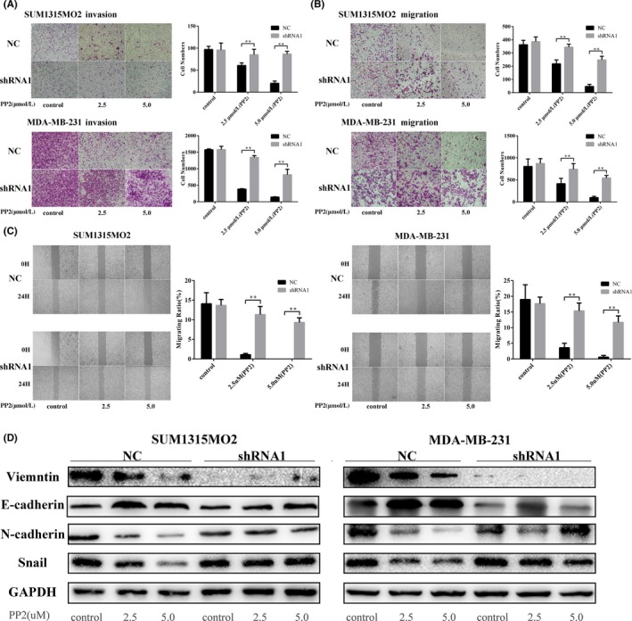 c‐Src inhibitor could not prevent epithelial‐mesenchymal transition ( EMT ) after knockdown of vimentin. SUM 1315 MO 2 cells and MDA ‐ MB ‐231 cells were transfected with control sh RNA and vimentin sh RNA 1 for 72 h. Then, they were treated with different concentrations of PP 2 for 48 h to detect A, invasion and B, cell migration. SUM 1315 MO 2 cells and MDA ‐ MB ‐231 cells were transfected with control sh RNA and vimentin sh RNA 1 for 72 h. C, Next, cells were treated with different concentrations of PP 2 for 24 h to measure wound healing. SUM 1315 MO 2 cells and MDA ‐ MB ‐231 cells were transfected with control sh RNA and vimentin sh RNA 1 for 72 h. Next, cells were treated with different concentrations of PP 2 for 48 h. D, Cell lysates were harvested for immunoblotting with specific antibodies against vimentin, E‐cadherin, <t>N‐cadherin,</t> and Snail. ** P