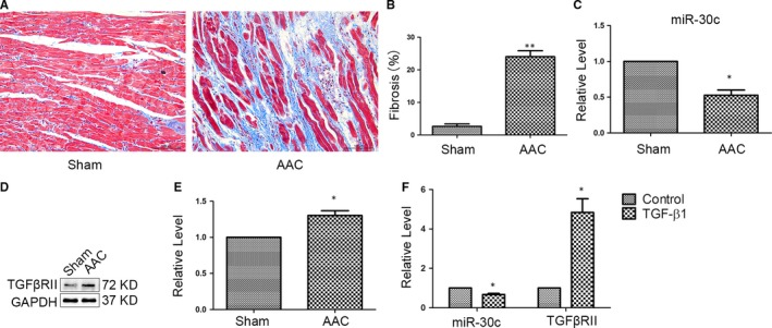MiR‐30c was decreased in atrial fibrosis. (A, B) Masson's trichrome staining and quantitative analysis in left atrium of Sham (n = 6) and AAC (n = 7) groups. The blue staining indicates interstitial fibrosis. Interstitial fibrosis was increased in AAC rats. ** P