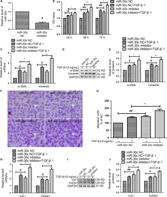 The miR‐30c inhibitor reversed the anti‐fibrotic effects on CF s. (A) CF s were transfected with a miR‐30c inhibitor or miR‐30c inhibitor negative control ( NC ) for 72 hours. The level of miR‐30c was decreased in CF s transfected with miR‐30c inhibitor by qRT ‐ PCR . NC was used as an inhibitor negative control. # P