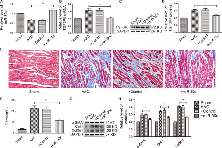 In vivo overexpression of miR‐30c via AAV 9 attenuates atrial fibrosis. (A) After administering AAV 9‐miR‐30c into the inferior vena cava for 8 weeks, the level of miR‐30c in the left atrium was increased by qRT ‐ PCR . ** P