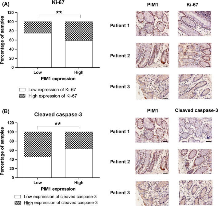 Correlation of PIM 1 expression with Ki‐67 and cleaved caspase‐3 expression in colorectal cancer tissue. A, Positive association between PIM 1 and Ki‐67 expression. B, Inverse association between PIM 1 and cleaved caspase‐3 expression. ** P
