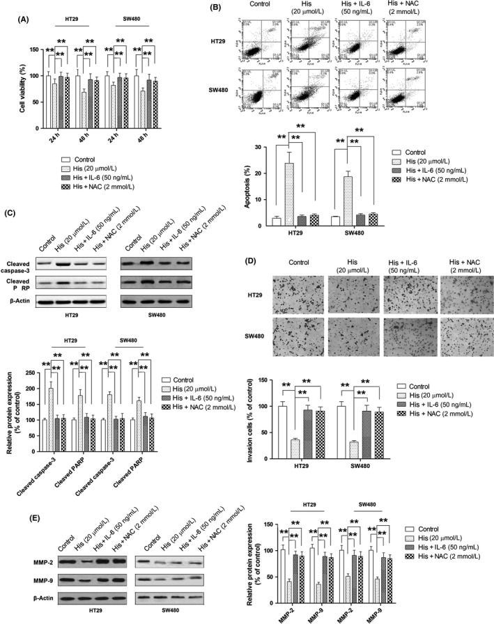 Role of reactive oxygen species ( ROS )/ JAK 2/signal transducer and activator of transcription 3 ( STAT 3) signaling in the anticancer effect of hispidulin against colorectal cancer. A–E, Effect of JAK 2/ STAT 3 activator interleukin‐6 ( IL ‐6) and ROS inhibitor N‐acetylcysteine ( NAC ) on hispidulin‐induced growth inhibition (A), apoptosis (B), activation of caspase‐3 and poly( ADP ‐ribose) polymerase ( PARP ) (C), suppression of cell invasion (D), and repression of MMP ‐2 and MMP ‐9 expression (E). ** P