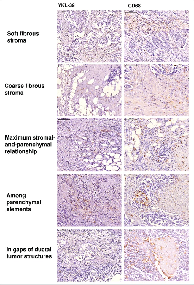 Immunohistochemical analysis of YKL-39 and CD68 expression in intratumoral compartments of human nonspecific invasive breast carcinoma. YKL-39 was visualized using anti-YKL-39 mouse monoclonal antibody (clone 4E10). CD68 was visualized using anti-CD68 mouse monoclonal antibody (Dako, clone PG-M1). Visualization of nuclei was performed using hematoxylin. Scale bar 100 µm (× 400).