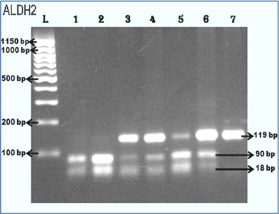 For ALDH2 Genotyping–Lane L, 100bp DNA Ladder; Lane 1–2, Digested fragments of 90bp and 18bp bands; Lane 3–6, One uncut (119bp) with two digested fragments (90bp and 18bp); Lane 7, Undigested band (119bp).
