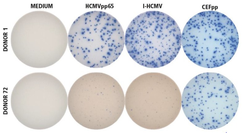 """Establishing the specificity of I-HCMV- and HCMVpp65-induced IFN-γ ImmunoSpot® formation. Donor 1 was seropositive for HCMV, Donor 72 was seronegative. PBMC from both donors were tested in an IFN-γ ImmunoSpot® assay in medium alone as the negative control (""""MEDIUM""""), or in the presence of the HCMVpp65 peptide pool (HCMVpp65) or inactivated HCMV virions (I-HCMV), as specified. As positive controls for eliciting memory T-cell responses, a pool of 32 peptides of HCMV, EBV, and influenza virus were used (CEFpp). The test was performed as specified in Materials and Methods, with three replicate wells for each condition. A representative image of one of the replicates is shown for each condition."""