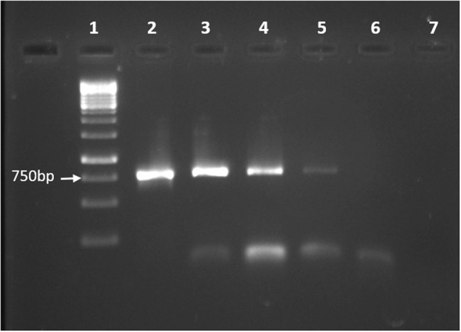 PCR confirming the natural transformation in E. anophelis endophthalmitis. Lane 1: 1 kb DNA ladder. Lane 2: Positive control (pCMV-6 BDNF plasmid used as template). Expected band size of BDNF gene is 750 bp. Lane 3–5: PCR products from plasmid isolated from E. anophelis endophthalmitis after natural transformation. Lane 6–7: Negative controls.