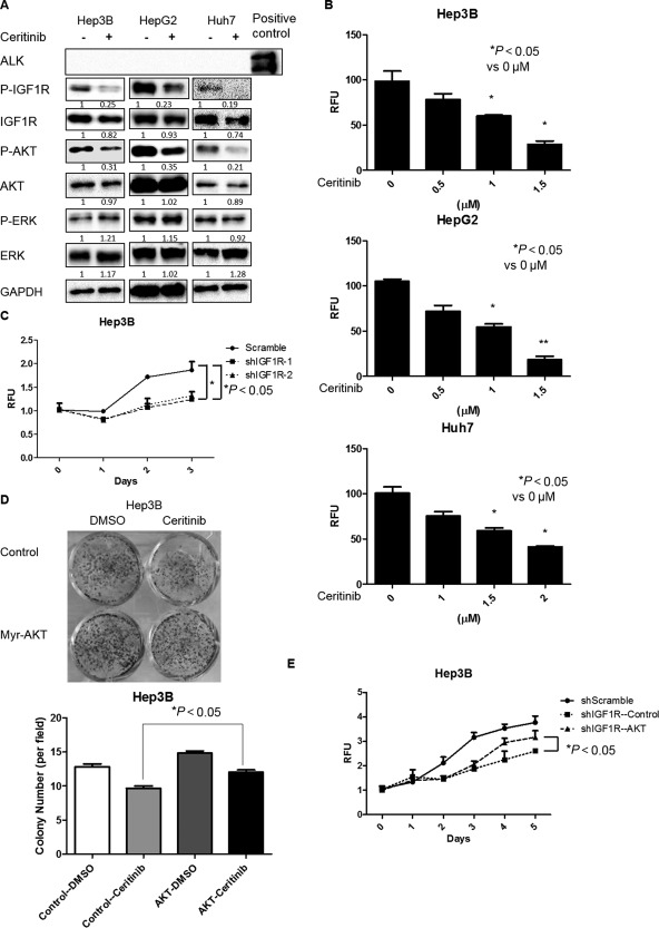Ceritinib suppressed HCC cell growth by inhibiting the IGF1R/AKT pathway. (A) HCC cells were treated with ceritinib (0.5 μM for Hep3B, 1 μM for HepG2, and 2 μM for Huh7) for 24 hours. Expressions of p‐IGF1R, IGF1R, p‐AKT (ser473), AKT, p‐ERK, ERK, and GAPDH proteins were examined by western blotting. (B) HCC cells were treated with ceritinib at different doses for 48 hours. Cell proliferation was analyzed by the alamarBlue assay. (C) Cell proliferation was analyzed by the alamarBlue assay in Hep3B cells infected with IGF1R shRNAs and scrambled shRNA lentiviral particles. (D) Hep3B cells infected with control or constitutively active AKT lentiviral particles were treated with 0.5 μM ceritinib for 48 hours. Cells were then cultured for 14 days and stained with 0.5% crystal violet. (E) Cell proliferation was analyzed by the alamarBlue assay in IGF1R knockdown Hep3B cells infected with control or constitutively active AKT lentiviral particles. Each experiment was repeated at least 3 times. Abbreviations: DMSO, dimethyl sulfoxide; GAPDH, glyceraldehyde 3‐phosphate dehydrogenase; RFU, relative fluorescence unit. Values in B, C, D, and E were mean ± SD (n = 3 in each group).