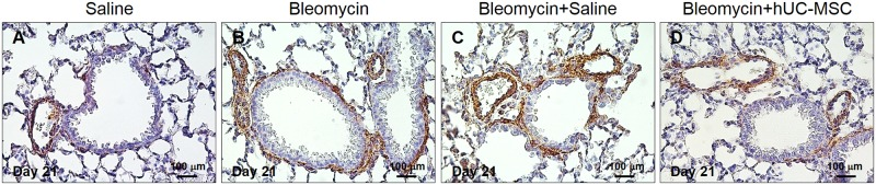 Immunohistochemical determination of α-SMA in lung tissue. Peribronchial and perivascular deposition of α-SMA in C57BL/6 mouse lungs at day 21 after injection of endotracheal sterile saline only ( A ), endotracheal bleomycin only ( B ), endotracheal bleomycin followed by intravenous sterile saline ( C ) or endotracheal bleomycin followed by intravenous hUC-MSC ( D ). Lung sections were immunostained with anti-α-SMA antibody. Representative microscopic images (40× magnification) of three independent experiments are shown.