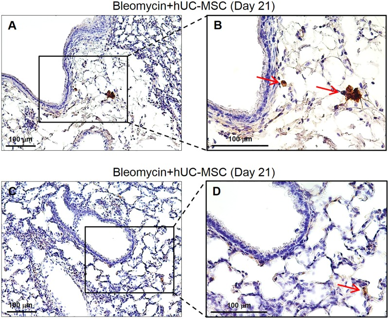 Detection of hUC-MSC in lung tissue by HLA-1 and CD105 IHC. Lung sections obtained from C57BL/6 mice receiving endotracheal bleomycin followed by intravenous hUC-MSC were immunostained with anti-HLA-1 ( A-B ) or anti-CD105 ( C-D ) antibodies. Representative microscopic images (200X and 400X) of three independent experiments are shown,. Lung sections from hUC-MSC-treated mice show at day 21 (i.e. 14 days after second hUC-MSC infusion) normal alveolar architecture with no fibrosis or inflammation, and only few positive cells (arrows, 400X).