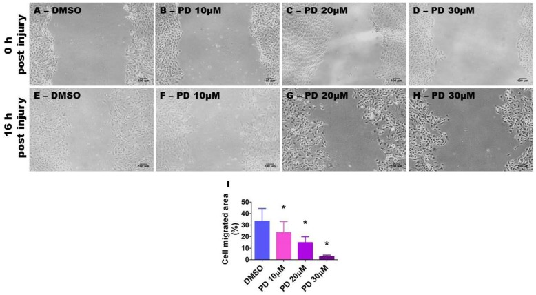 Suppression of ERK1/2 activity decreases HPAEC migration. HPAECs grown as monolayers in six-well plates were treated with 10 µg/mL of mitomycin for 2 h and scratched with a 200 µL pipette tip. The cells were then treated with dimethylsulfoxide (DMSO) or PD98059 at concentrations of 10 (PD 10), 20 (PD 20), or 30 (PD 30) µM. The wound closure area was analyzed using Image J software after 16 h of treatment. ( A – H ) Representative photographs showing cell migration. ( I ) Quantitative analysis of cell migration. The values are presented as mean ± SD ( n = 6/group). Significant differences between DMSO- and PD-treated cells are indicated by *, (DMSO vs. PD 10 [ p