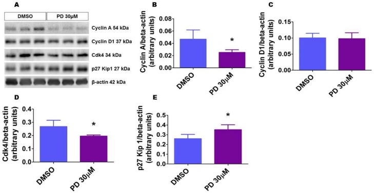 ERK1/2 inhibition affects the expression of cell cycle regulatory proteins. HPAECs were treated with dimethylsulfoxide (DMSO) or 30 µM PD98059 (PD 30) for 24 h, after which whole-cell protein were extracted, and immunoblotting was performed using antibodies against the following proteins: cyclin A, cyclin D, Cdk4, p27, and β-actin. Representative immunoblots showing the expression of the above proteins ( A ). Densitometric analyses wherein cyclin A ( B ), cyclin D ( C ), Cdk4 ( D ), and p27 Kip 1 ( E ) band intensities were quantified and normalized to those of total β-actin. The values are presented as mean ± SD ( n = 6/group). Significant differences between DMSO- and PD-treated cells are indicated by * p
