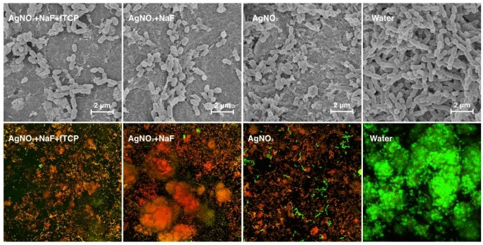 Representative scanning electron micrographs (images in the upper row) of the biofilm topography, and typical images of confocal laser scanning microscopy images (images in the lower row) of the Streptococcus mutans biofilm of the four treatment groups. Dead bacterial cells are marked red, and live cells are marked green (at magnification ×100).