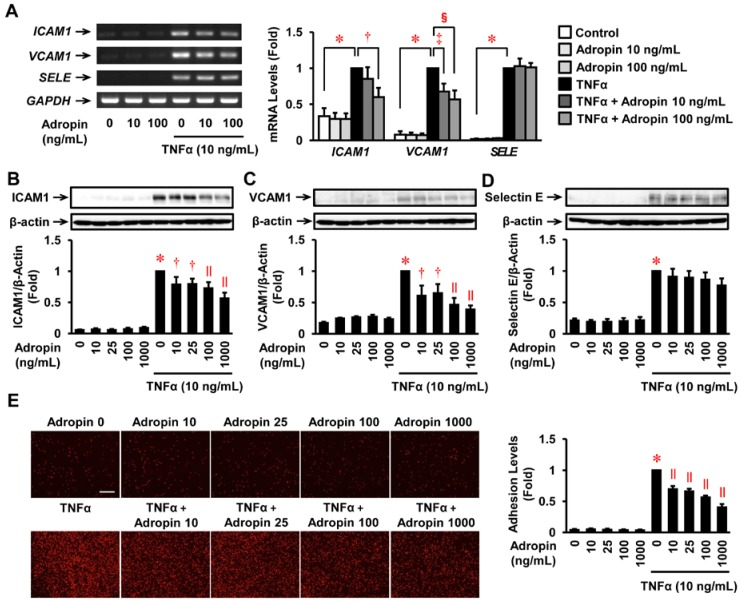 Effects of adropin on inflammatory response and monocyte adhesion in HUVECs. ( A ) mRNA expression of ICAM1 , VCAM1 , and SELE (selectin E gene) was analyzed by RT-PCR. HUVECs were pre-treated with adropin (0, 10, 100 ng/mL) for 30 min and then incubated with adropin (0, 10, 100 ng/mL) + TNFα (0, 10 ng/mL) for 4 h. Representative images are shown; the graph on the right side indicates densitometry data following normalization relative to GAPDH ( n = 3–4). ( B – D ) HUVECs treated as described above were harvested and subjected to immunoblot to evaluate ICAM1, VCAM1, and selectin E protein expression ( n = 4–5). Upper panels show representative immunoblots with densitometry data after normalization relative to β-actin shown beneath. ( E ) Confluent HUVECs were incubated in 0.5% fetal bovine serum (FBS)-EGM-2 for 16 h, and then pre-treated for 30 min with the indicated concentrations of adropin, followed by a 4-h incubation in the presence or absence of TNFα (10 ng/mL). Subsequently, calcein red-orange-labeled THP1 monocytes were plated on the HUVEC monolayer and incubated for 1 h. After washing, the adherent cells were observed by fluorescence microscopy ( n = 4). Scale bar = 100 μm. Baseline (1 fold) = 66318.5 ± 4599.2 pixels. ( B – E ) * p