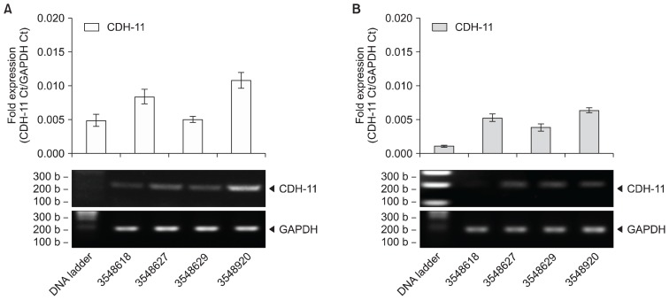 Fresh and cryopreserved UCT expresses <t>CDH-11</t> mRNA. (A) Fresh and (B) frozen UCT from 4 different donors were processed for RNA, converted to cDNA and screened for CDH-11 by RT-PCR. GAPDH was used as an internal control and data are expressed as mean fold expression against GAPDH±SD from 3 experiments. Representative reactions were resolved on a 1.5% agarose gel and captured on an imager.