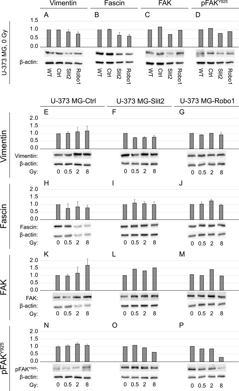 Semiquantitive immunoblot analyses. The expression of vimentin (A, E-G), fascin (B, H-J), focal adhesion kinase (FAK) (C, K-M), and phosphorylated focal adhesion kinase (pFAK Y925 ) (D, N-P) was quantified in U-373 MG wild-type cells and clones overexpressing Slit2 or Robo1 and the effect of photon irradiation on their expression was assessed. Proteins were isolated 24h after irradiation. WT, U-373 MG wild-type cells; Ctrl, U-373 MG control cells (transfected with empty vector); Robo1, U-373 MG-Robo1 (stable clone overexpressing Robo1); Slit2, U-373 MG-Slit2 (stable clone overexpressing Slit2).