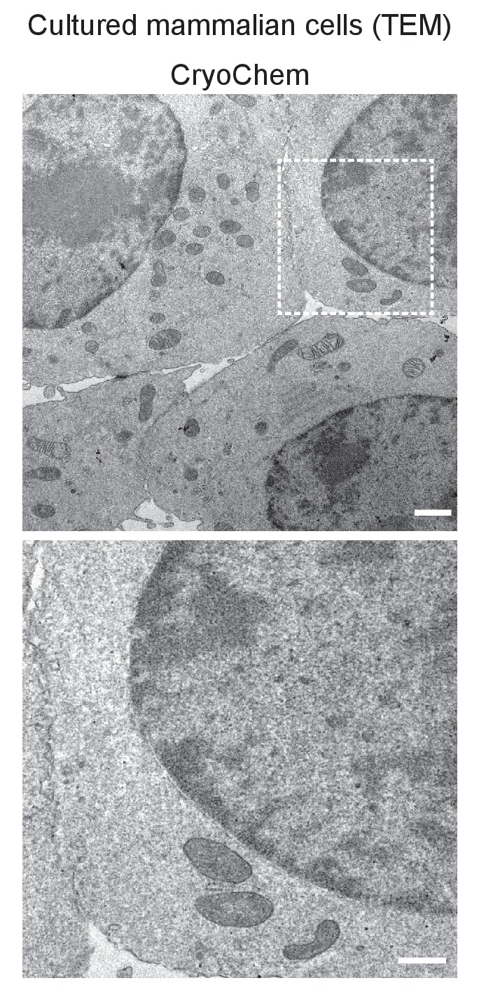 TEM images showed well-preserved ultrastructures in the CCM-processed HEK 293T cells. In the enlarged view of the boxed region (bottom panel), smooth nuclear membranes were observed. Scale bars: 1 µm for the top panel, 500 nm for the bottom panel. Pixel resolution (x,y): 6.01 nm.
