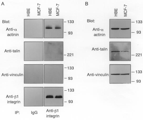 Coprecipitation of α-actinin, but not talin or vinculin, with β1 integrin in HBE and MCF-7 cells. (A) Integrin β1 was immunoprecipitated (IP) from HBE and MCF-7 cells using the anti-β1 integrin antibody or control IgG. The immunoprecipitates were probed with anti-α-actinin, anti-talin, or anti-vinculin antibody. Molecular size markers are indicated at right in kDa. (B) Equal amounts (5 μg protein) of whole cell lysates from quiescent HBE and MCF-7 cells were probed with anti-α-actinin, anti-talin, or anti-vinculin antibody. Molecular size markers are indicated at right in kDa.