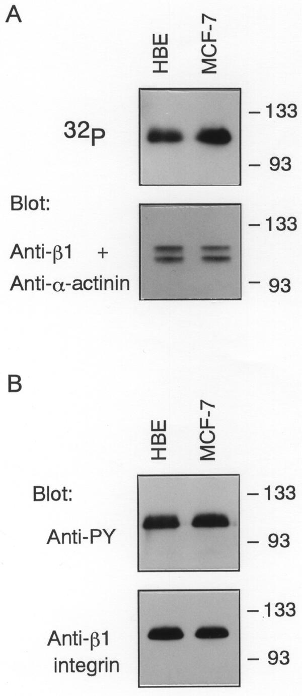 The phosphorylation state of β1 integrin. (A) HBE or MCF-7 cells which were quiescent and adherent to collagen IV were metabolically labeled with [ 32 P]orthophosphoric acid and β1 integrin was immunoprecipitated from the cells. After separation on 8% SDS-PAGE, gels were dried and autoradiographed. Unlabeled samples were electrophoresed and transferred onto membranes. The blots were probed with antibodies to β1 integrin and α-actinin. Molecular size markers are indicated at right in kDa. (B) Tyrosine phosphorylation of β1 integrin in HBE and MCF-7 cells. Integrin β1 was immunoprecipitated from HBE or MCF-7 cells and the immunoprecipitates were resolved by 8% SDS-PAGE before blotting. The blots were then probed with anti-PY or anti-integrin β1 monoclonal antibody. Molecular size markers are indicated at right in kDa.