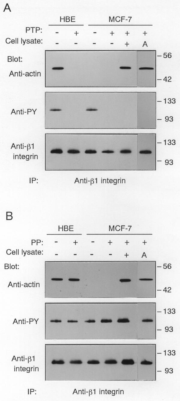 Effects of dephosphorylation of β1 integrin on its coprecipitation with actin. (A) The β1 integrin immunoprecipitates from quiescent HBE or MCF-7 cells were treated with (+) or without (-) PTP, then immunoblotted with anti-actin, anti-β1 integrin, or anti-PY antibody. The PTP-treated β1 integrin immunoprecipitates from MCF-7 cells were incubated for 30 min with (+) or without (-) the supernatant of the β1 immunoprecipitates containing unbound actin (Cell lysate), or with 5 μg/ml exogenous human platelet actin (A). Molecular size markers are indicated at right in kDa. (B) The β1 integrin immunoprecipitates from quiescent HBE or MCF-7 cells were treated with (+) or without (-) PP2A 1 , then the PP2A 1 -treated β1 integrin from MCF-7 cells were incubated for 30 min with (+) or without (-) the supernatant of the β1 immunoprecipitates (Cell lysate), or with 5 μg/ml exogenous human platelet actin (A). The immunoblots were probed with anti-actin, anti-β1 integrin, or anti-PY antibody. Molecular size markers are indicated at right in kDa.