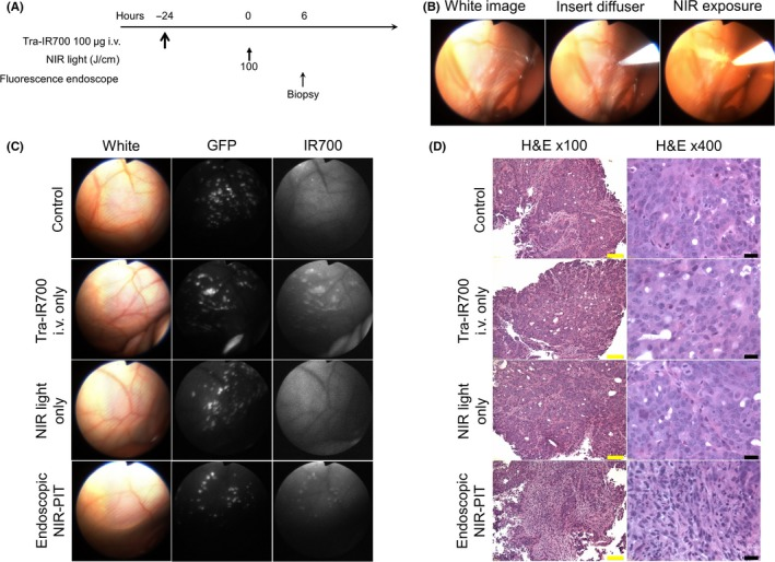 In vivo fluorescence real‐time endoscopic imaging and histological near infrared photoimmunotherapy ( NIR ‐ PIT ) effect. A, Treatment regimen is shown. Biopsy specimens were obtained 6 hours after NIR ‐ PIT . B, In vivo real‐time endoscopic intraperitoneal imaging of N87 GFP ‐luc tumor‐bearing mice. Peritoneal cavity was exposed to NIR light using an optical diffuser through the endoscope. C, In vivo fluorescence real‐time endoscopic intraperitoneal imaging of N87 GFP ‐luc tumor‐bearing mice. Tumors demonstrate GFP and IR 700 fluorescence in mice administered tra‐ IR 700. In the absence of tra‐ IR 700 no IR 700 fluorescence was seen. After NIR ‐ PIT , IR 700 fluorescence decreased. D, Biopsy specimens stained with H E demonstrate few scattered clusters of damaged tumor cells within a background of diffuse cellular necrosis and micro‐hemorrhage with infiltration of inflammatory cells consistent with acute granulation in endoscopic NIR‐PIT group, while no obvious damage was observed in control groups, including tra‐ IR 700 alone without NIR light and NIR light alone without tra‐ IR 700 groups. Yellow scale bars = 100 μm. Black scale bars = 20 μm