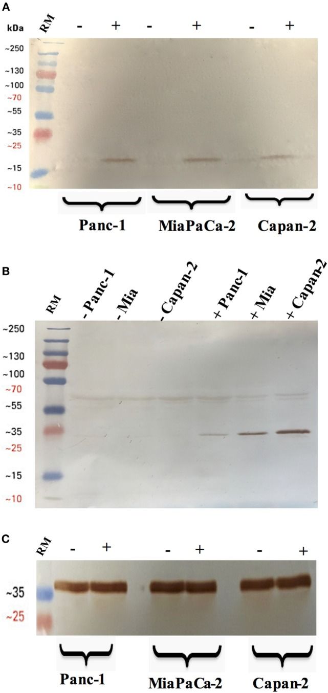 Cleavage of caspase 3 (A) and 8 (B) in pancreatic cancer cell lines following rfhSP-D treatment. Pancreatic cancer cell lines were analyzed for caspase 8 and 3 activation via western blot using anti-rabbit cleaved caspase 3 and 8 (1:1,000) at 4°C overnight, followed by incubation with secondary anti-rabbit IgG HRP-conjugate (1:1,000) for 1 h at room temperature. The membrane was washed with PBST (PBS + 0.05% Tween 20) three times, 10 min each between each step. The bands were developed using 3,3′-diaminobenzidine substrate kit. The cleaved caspase 3 and 8 were detected only in the rfhSP-D treated samples of all cell lines, whereas no bands appeared in the untreated cell samples. Full-length caspase 8 bands are visible around 43 kDa. (C) Anti-GAPDH was used as a loading control.