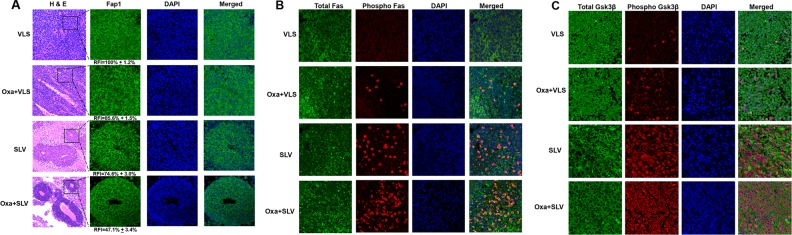 Fap1-inhibition with SLV peptide increases phosphorylation of Fap1-substrates Fas and Gsk3β in a murine xenograft model SW620 cells were injected in the flanks of athymic Nude mice and tumor volume was determination biweekly. Mice were treated weekly with oxaliplatin (days 0, 7 and 14) and injected daily with Fap1 blocking SLV peptide or VLS control peptide, or treated with SLV or VLS peptide alone (n=12 per cohort). Tumors were simultaneously harvested from cohorts of mice when control tumors were > 2,000 mm3. (A) SLV peptide increases gland formation in xenograft tumors with or without oxaliplatin. Histology was analyzed by hematoxylin/ eosin staining. Fap1 expression was determined by immunofluorescence. Relative fluorescent intensity (RFI) of Fap1 staining is indicated below relevant panels. (B) SLV peptide increases Fas-phosphorylation in xenograft tumors with or without by oxaliplatin. Immunofluorescent detection of total versus phospho-Fas was performed with DAPI staining of nuclei. Areas without gland formation were selected for this study. (C) SLV peptide increases Gsk3β-phosphorylation with or without oxaliplatin. Immunofluorescent detection of total versus phospho- Gsk3β was performed with DAPI staining of nuclei. Areas without gland formation were selected for this study.