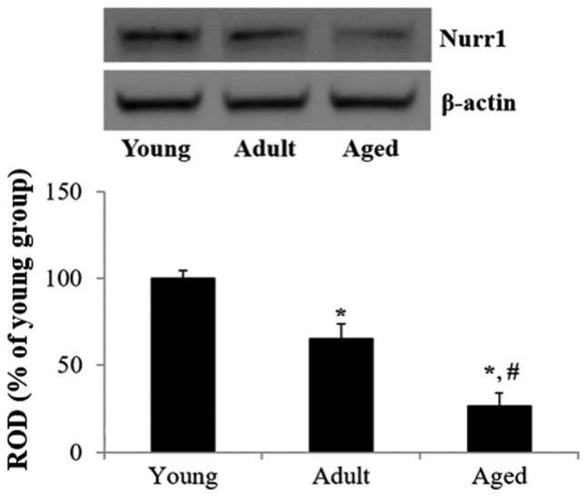 Western blot analysis of Nurr1 protein expression in hippocampi derived from young, adult and aged gerbils. The RODs of immunoblot bands are shown as percentage values. Data are presented as the means ± standard error of the mean. *P