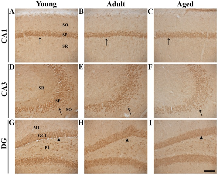 Nurr1 immunohistochemistry in hippocampal regions of young, adult and aged gerbils. Nurr1 expression was detected in the (A-C) CA1 and (D-F) CA3 regions and (G-I) DG. In the young group, strong Nurr1 immunoreactivity was detected in pyramidal neurons of the SP in the CA1 and 3 regions (arrows) and in granule cells of the GCL in the DG (arrowheads). Nurr1 immunoreactivity in the SP and GCL gradually decreased in the adult and aged groups. Magnification, ×20; scale bar, 100 µm. Nurr1, nuclear receptor related-1 protein; DG, dentate gyrus; SO, stratum oriens; SP, stratum pyramidale; SR, stratum radiatum; ML, molecular layer; GCL, granule cell layer; PL, polymorp hic layer.