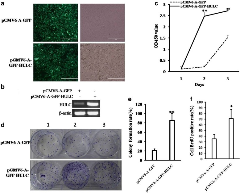 HULC promotes liver cancer cell growth in vitro. a The photography of the Hep3B cell lines transfected with pCMV6-A-GFP or pCMV6-A-GFP-HULC. b RT-PCR for HULC in HULC overexpressed control Hep3B stable cell lines; β-actin as internal control. c Cell proliferation assay was performed in 96-well format using the CCK8 cells proliferation kit to determine the cell viability as described by the manufacturer. Data are means of value from three independent experiments, bar±SEM. **, P