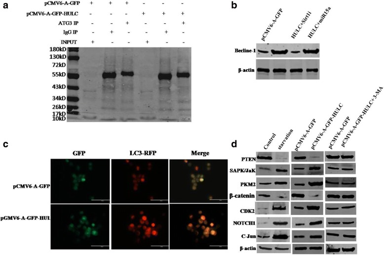 HULC alters gene expression via autophagy. a Co-Immunoprecipitation (IP) with anti-ATG3 followed by Western blotting with anti-LC3 in Hep3B cell line. IgG IP as negative control. INPUT refers to Western blotting with. Anti-LC3. b Western blotting with anti-becline-1 in Hep3B cell line. c Observation for autophagy (LC3-RFP) in liver cancer cells Hep3B cell line. Scale bars, 100 μm. d Western blotting with anti-SAPK/JaK, anti-PKM2, anti-CDK2, anti-Notch1, anti-C-Jun,anti-PTEN, anti-β-catenin in Hep3B cell lines under starvation or transfected with pCMV6-A-GFP, pCMV6-A-GFP-HULC or pCMV6-A-GFP- HULC plus 3-methyladenine (3-MA),respectively