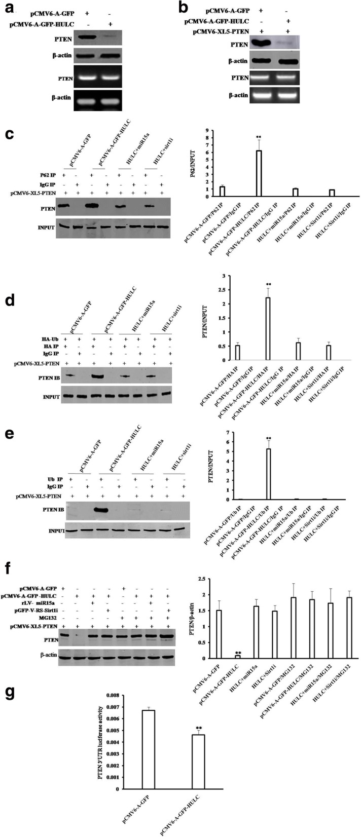 HULC inhibits PTEN through ubiquitin–proteasome system mediated by autophagy-P62. a Western blotting with anti-PTEN and RT-PCR with PTEN primer in Hep3B cell line. β-actin as internal control. b Western blotting with anti-PTEN and RT-PCR with PTEN primer in Hep3B cell lines transfected with pCMV6-A-GFP plus pCMV6-XL5-PTEN (FL), pCMV6-A-GFP-HULC plus pCMV6-XL5-PTEN (FL),respectively. c (left) Co-Immunoprecipitation (IP) with anti-62 followed by Western blotting with anti-PTEN in Hep3B cell lines transfected with pCMV6 -A-GFP plus pCMV6 -XL5-PTEN (FL), pCMV6-A-GFP-HULC plus pCMV6 -XL5-PTEN (FL), pCMV6-A-GFP-HULC plus pGFP-V-RS--Sirt1 plus pCMV6-XL5-PTEN (FL), and pCMV6-A-GFP-HULC plus pLV-miR15a plus pCMV6-XL5-PTEN (FL), respectively. ( right) density analysis of band. d (left) Co-Immunoprecipitation (IP) with anti-HA followed by Western blotting with anti-PTEN in the Hep3B cell line. INPUT refers to Western blotting with. Anti-PTEN. ( right) density analysis of band. e (left) Co-Immunoprecipitation (IP) with anti-HA followed by Western blotting with anti-PTEN in the Hep3B cell line. ( right) density analysis of band. f (left) Cells were incubated with 50 μM MG132 (Sigma) for 6 h at proper after transfection. Western blotting with anti-PTEN in Hep3B cell lines transfected with pCMV6-A-GFP plus pCMV6-XL5-PTEN (FL). g . The assay of PTEN 3'-UTR luciferase activity in Hep3B cells infected with pCMV6-A-GFP or pCMV6-A-GFP-HULC