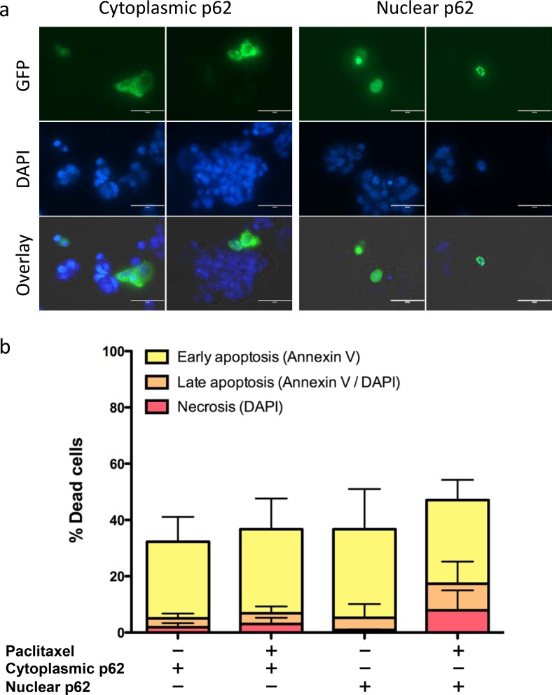 Cytoplasmic expression of p62 results in decreased responsiveness of EAC cells to paclitaxel. (a) OE19 p62 knockdown cells were transiently transfected with either a cytoplasmic or nuclear GFP-tagged p62 expression plasmid. GFP (GFP-p62 fusion proteins) and nuclear DAPI staining as analyzed by confocal microscopy are shown. (b) Annexin V/DAPI fluorescence-activated cell sorting (FACS) analysis of OE19 cells expressing cytoplasmic or nuclear p62 after 48 h of paclitaxel treatment. Bars represent four experimental replicates.