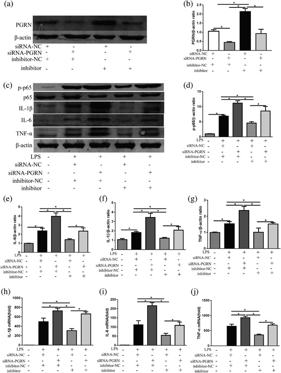 The rescue experiment was performed to confirm the relationship between miR‐34b‐5p and PGRN in vitro. (a) RAW264.7 cells were co‐transfected with the miR‐34b‐5p inhibitor and siRNA‐PGRN, and the protein levels of PGRN were evaluated by Western blot, and β‐actin was used as a loading control. (b) Quantitation of the PGRN/β‐actin ratios in the co‐confected RAW264.7 cells. Inflammatory mediator alterations in RAW264.7 cells after siRNA and/or miR‐34b‐5p inhibitor co‐transfection in LPS conditions (100 ng/ml). (c) The cellular protein levels of phosphorylation of NF‐κB p65, NF‐κB p65, IL‐1β, IL‐6, and TNF‐α were evaluated by Western blot, and β‐actin was used as a loading control. Quantitation of (d) the p‐p65/β‐actin ratios, (e) IL‐6/β‐actin ratios, (f) IL‐1β/β‐actin, and (g) TNF‐α/β‐actin ratios. The cellular levels of (h) IL‐1β mRNA, (i) il‐6 mRNA, and (j) TNF‐α mRNA in cells were determined by RT‐PCR. * p