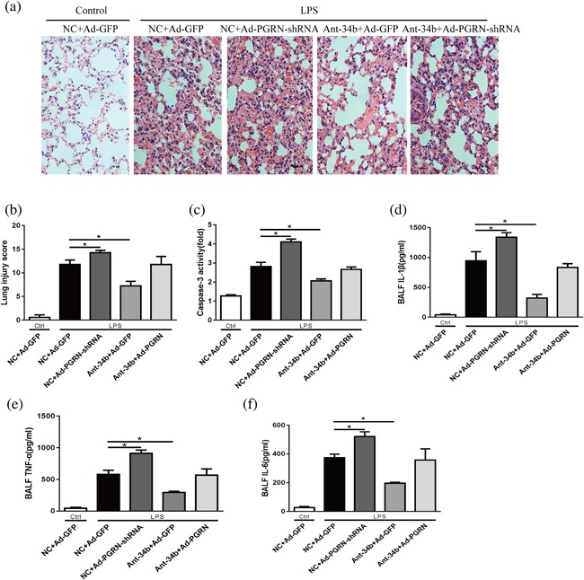 The protective effects of miR‐34b‐5p are dependent on PGRN. Mice were subjected to the miR‐34b‐5p antagomir after administration of Ad‐PGRN‐shRNA or the NC (Ad‐GFP) for 7 days. After 48 hr, the mice were administered with LPS by intratracheal injection for 24 hr. (a) Representative images of the lung lesions in the lung sections by HE staining. Scale bar = 50 µm, n = 4. (b) Quantitation of the lung injury scores in the different treatment groups. (c) The caspase‐3 activity of the lungs in the different treatment groups, n = 4. The levels of (d)IL‐1β, (e)TNF‐α, and (f) IL‐6 in the BALF were assessed by ELISA. * p