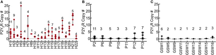 P2Y 2 R expression is significantly upregulated in HCPS compared to controls. RNA was extracted from lung tissues samples with the Qiagen RNeasy FFPE kit (cat# 73504) and quantified with a Thermo Fisher Scientific Nanodrop. P2Y 2 R expression levels were measured by the TaqMan assay using a WT P2Y 2 R plasmid as standard. P2Y 2 R copy #s were normalized to total RNA extracted from the embedded tissues. Each sample slice was measured in triplicate. (A) The plot of P2Y 2 R for each HCPS patient, shown on the x-axis as H1-H22. Each data point per patient represents a triplicate measurement of P2Y 2 R expression in a 10 μm slice cut from the FFPE blocks. The number of segments analyzed is shown for each case above the replicate data points (e.g., n = 11 for H1). Ninety-seven distinct segments from all cases were analyzed. Lung tissues from two decedents (H4, and H9) were not available. The error bars represent the median and range. For all HCPS samples, the minimum, median, maximum and mean values were 0.0055, 2.10, 24.88, and 4.1 ± 0.48 (SEM). (B,C) Plot of P2Y 2 R for pneumonia (P) and gunshot wound cases (GSW). The experimental conditions are similar to those described for HCPS. Cases for which no lung tissue samples were available were excluded from the graph. For all pneumonia tissue segment samples ( n = 39), the minimum, median, maximum and mean values were 0.0005, 0.07, 4.4, 0.54 ± 0.16. For all GSW samples ( n = 21), the minimum, median, maximum and mean values were 0.0052, 0.18, 2.4, and 0.46 ± 0.10 (SEM).