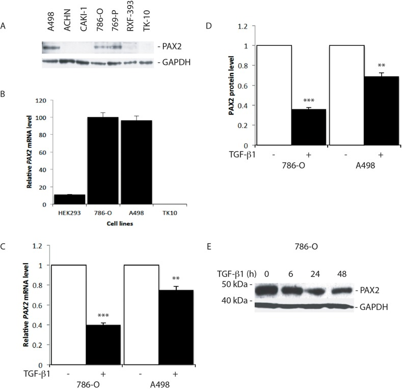 """TGF-β1 treatment suppresses PAX2 mRNA and protein expression in CC-RCC cell lines (A) Western blot analysis of PAX2 protein expression in RCC cell lines. GAPDH was used as a loading control. (B) QRT-PCR analysis of the relative level of endogenous PAX2 mRNA in HEK293 and three CC-RCC human cell lines. The data represent three separate experiments. (C) Relative PAX2 mRNA expression level, and (D) PAX2 protein following treatment of 786-O and A498 CC-RCC cells with 10 ng/ml TGF-β1 (labelled """"+"""", black columns) versus vehicle treated controls (labelled """"-"""", white columns). The results from three separate experiments after normalisation with GAPDH are shown. (E) Western blot of PAX2 protein expression relative to GAPDH following no treatment (0 h) of 786-O cells, or treatment for 6, 24 or 48 h with 10 ng/ml TGF-β1. Data are represented as mean ± S.E.M. The data were analysed by Student's t test using GraphPad Prism 5.01, ** p"""
