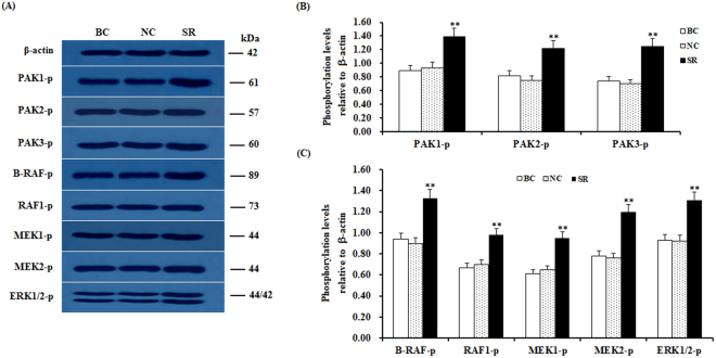 Knockdown of SLIT2 enhances the phosphorylation levels of PAKs, RAFs and ERK1/2. The granulosa cells were transfected with the SLIT2-specific siRNA, scrambled siRNA (negative control) or no siRNA (blank control). ( A ) An in vitro phosphorylation assay was performed by western blotting. β-actin was used as a loading control. The blots were cropped, and the gels were run under the same experimental conditions. ( B , C ) The blotting signal intensity was quantified densitometrically after phosphorimaging (shown in A ) and normalized for loading by comparison to the signal of β-actin. The signal intensity of the targeted proteins or phosphorylated proteins was expressed as a ratio to the β-actin signal in arbitrary units (n = 5 per mean ± SEM). Five independent experiments were carried out in triplicate. The results are representative of at least three independent experiments. The statistical significance is marked with different superscript symbols **P
