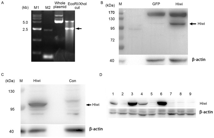 Generation of human Hiwi-expressing plasmid. (A) PcDNA3.1-myc-Hiwi plasmids were cut using Eco RI and Xho I restriction enzymes and separated by agarose gel electrophoresis. The arrow indicates inserts of ~2.5 kb. (B) 293 cells were transfected with PcDNA3.1-myc-Hiwi plasmid, and the cell lysates were subjected to western blotting using a Hiwi-directed antibody. (C) At 24 h after plating, primary mouse hepatocytes were incubated for 4 h with recombinant adenoviruses expressing Hiwi at a total multiplicity of infection of 10 pfu per cell. The cells were then cultured for an additional 24 h in fresh medium, and the cell lysates were subjected to western blotting using a myc-directed antibody. The arrow indicates the Hiwi protein band. (D) SMMC7721 cells were transfected with pcDNA3.1-myc-Hiwi plasmid and were selected in 400 µg/ml G418 for 2 weeks. The cell lines that stably express Hiwi at high (lanes 3 and 6) or low (lanes 1 and 4) levels were identified by western blot analysis using a Hiwi-directed antibody. The cell lines that do not express Hiwi were used as controls. Hiwi, piwi like RNA-mediated gene silencing 1.