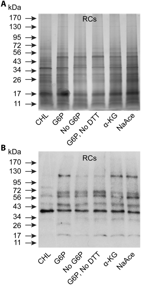 Protein biosynthesis assessed by protein fractionation and Western blot analysis. ( A ) Silver stained <t>SDS</t> containing polyacrylamide gel-resolved protein fractions were assessed for the protein abundance variations in RCs incubated in the axenic media with different carbon sources as in Fig. 5 . ( B ) As in panel A, except that the resolved proteins were transferred to a nylon membrane and assessed by Western blot analysis using mouse polyclonal serum against E . <t>chaffeensis</t> .