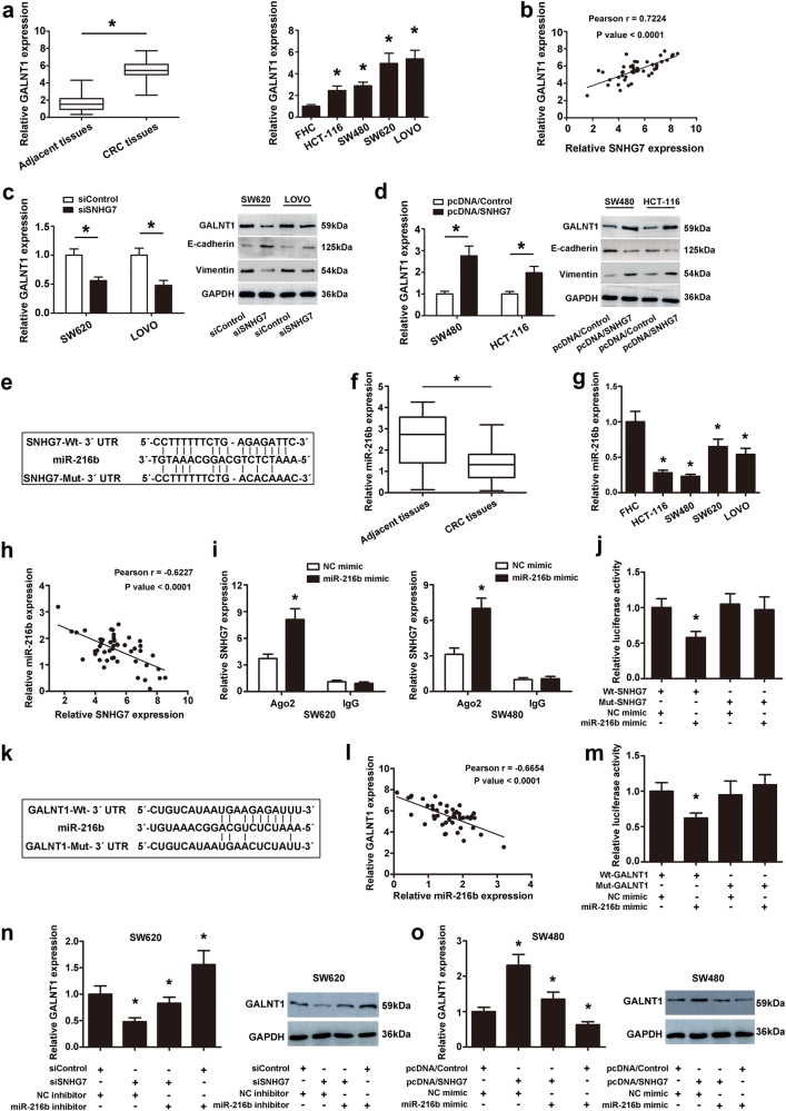 SNHG7 acted as a ceRNA by sponging miR-216b and regulated GALNT1 expression indirectly. a The differential expression of GALNT1 in CRC tissues and adjacent normal colon tissues was examined. Expressional levels of GALNT1 in CRC cell lines and FHC cell. b Pearson's correlation curve identified positive correlation between SNHG7 and GALNT1 in CRC tissues. c The expressional levels of GALNT1 mRNA and protein, E-cadherin and Vimentin proteins in CRC cells transfected with siSNHG7 were evaluated by qRT-PCR and western blot. d The levels of GALNT1 mRNA and protein, E-cadherin and Vimentin proteins in CRC cells transfected with pcDNA/SNHG7 were evaluated by qRT-PCR and western blot. e The predicted binding sites of miR-216b to the SNHG7 sequence were shown. f The differential expression of miR-216b in CRC tissues and adjacent normal colon tissues was analyzed. g The levels of miR-216b was investigated in CRC cell lines and human normal colon cell line by qRT-PCR. h Pearson's correlation curve revealed the negative relevance between SNHG7 and miR-216b expression. i RNA-IP was performed in SW620 and SW480 cells transfected with NC mimic and miR-216b mimic. SNHG7 expression was detected using qRT-PCR. j Luciferase activity of 293T cells cotransfected with miR-216b mimic and luciferase reporters containing SNHG7-Wt or SNHG7-Mut transcript were analyzed. k The predicted binding sites of miR-216b to the GALNT1 sequence were shown. l Pearson's correlation curve revealed the negative relevance between GALNT1 and miR-216b levels. m Luciferase activity of 293T cells cotransfected with miR-216b mimic and luciferase reporters containing GALLNT1-Wt or GALNT1-Mut transcript were performed. n The levels of GALNT1 transfected with miR-216b inhibitor or siSNHG7 in SW620 cell were analyzed by qRT-PCR and western blot. o The levels of GALNT1 transfected with miR-216b mimic or pcDNA/SNHG7 in SW480 cells were analyzed by qRT-PCR and western blot. The error bars in all graphs represented SD, an