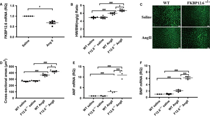 FKBP12.6 deficiency aggravates AngII‐induced cardiac hypertrophy in vivo. FKBP12.6 −/− and WT mice were subjected to 14 d AngII or saline infusion, and then the hearts were isolated from the mice for histological and biochemical analyses. The mRNA expressions of FKBP12.6 in hearts from WT mice after AngII or saline infusion were determined by qRT‐PCR (A). The heart weight and body weight of each mouse were measured for calculating the ratio of heart weight/body weight (HW/BW) (B). The myocyte cross‐sectional areas were stained with FITC‐conjugated wheat germ agglutinin (C), and quantitatively analysed (D, ×400, n = 200 cells per section). The mRNA expressions of hypertrophic makers ANF (E) and BNP (F) were analysed by qRT‐PCR. The data represent the mean ± SEM, n = 5 mice, $ P