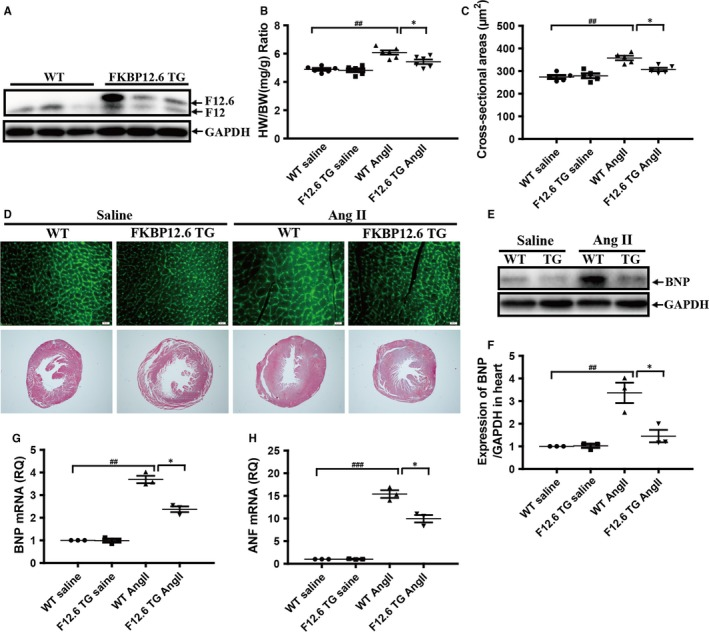 Cardiac‐specific overexpression of FKBP12.6 protects hearts from AngII‐induced cardiac hypertrophy in vivo. The expressions of FKBP12.6 protein in the hearts from three lines 2‐month‐old FKBP12.6 transgenic mice (FKBP12.6 TG) and their WT littermates were determined by Western blot (A). The heart weight and body weight of each mouse were measured for calculating the ratio of heart weight/body weight (HW/BW) in FKBP12.6 TG and WT mice which were subjected to 14 days AngII or saline infusion (B). The myocyte cross‐sectional areas were determined by FITC‐conjugated wheat germ agglutinin staining (D, upper, ×400) and quantitative analysis (C, n = 200 cells per section), and the histological examination was analysed by HE staining (D, lower, ×40). The expressions of BNP protein (E F) and the mRNA expressions of hypertrophic makers BNP (G) and ANF (H) in hearts from FKBP12.6 TG and WT mice after AngII or saline infusion were analysed by Western blot and qRT‐PCR. The data represent the mean ± SEM, n = 5, * P