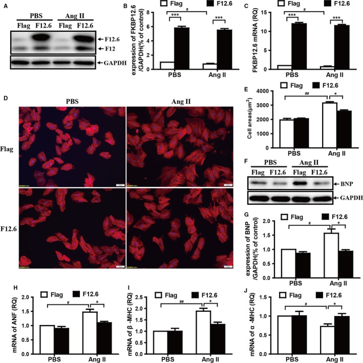 Overexpression of FKBP12.6 protects H9c2 cells from AngII‐induced hypertrophy. FKBP12.6 overexpressing stable H9c2 cell lines were prepared as described in the methods, and both FKBP12.6 overexpressing (F12.6) and Flag‐control (Flag) H9c2 cells were treated with or without 200 nmol/L AngII for 24 h. The expressions of FKBP12.6 proteins were detected by Western blot (A) and quantitatively determined by density analysis (B). The mRNA expression of FKBP12.6 was also examined by qRT‐PCR (C). The cell sizes of FKBP12.6 overexpression (F12.6) and Flag‐control (Flag) H9c2 cells were detected by Phalloidin‐Tetramethylrhodamine staining (D, ×200), and the cell area was calculated by measuring at least 200 cells per slide using Image‐Pro Plus 6 software (E). The expressions of BNP protein (F G) and the mRNA expression of ANF (H), β‐MHC (I) and α‐MHC (J) were determined by Western blot analysis and qRT‐PCR, respectively. All results were presented from three independent experiments, and the data represent the mean ± SEM, * P