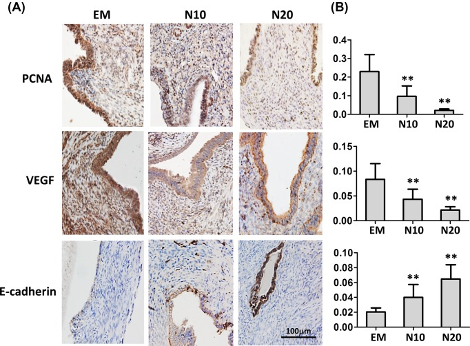 Effects of nobiletin on the expression of proliferation and angiogenesis relevant genes in ectopic endometrium in vivo ( A ) Immunohistochemistry analysis of PCNA, VEGF, and E-cadherin. ( B ) The staining levels of PCNA, VEGF, and E-cadherin in different treatment groups. Abbreviations used in the figure: EM, endometriosis mice without treatment; N10, endometriosis mice treated 10 mg/kg/day; N20, endometriosis mice treated 20 mg/kg/day; N =6 mice per group. Values are expressed as means ± S.E.M. of three independent experiments; ** P