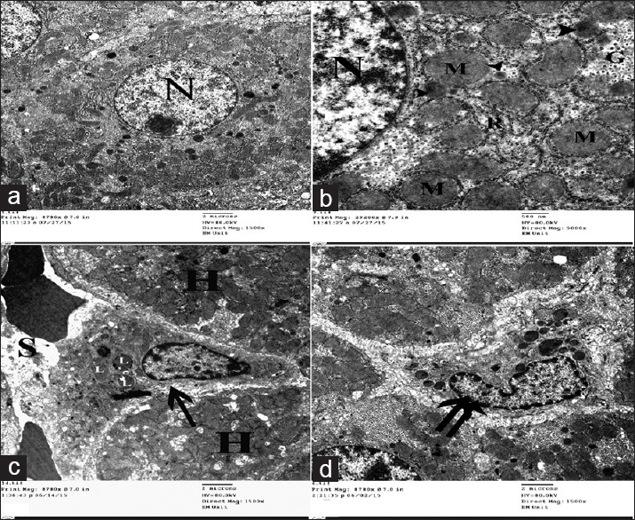Electron micrographs of liver ultrathin sections of control group showing (a) Polyhedral-shaped hepatocyte-containing large rounded nucleus (N) with extended chromatin and prominent nucleolus. (b) The cytoplasm-containing abundant mitochondria (M), rER (R), glycogen granules (G), and multiple peroxisomes (arrowhead). (c) Space of Disse between hepatocytes (H) and blood sinusoids (S) containing HSCs cell (arrow) with multiple lipid with droplets (L). (d) Kupffer cell (double arrow) appears as irregular shaped cell with indented nucleus and multiple cytoplasmic dense bodies