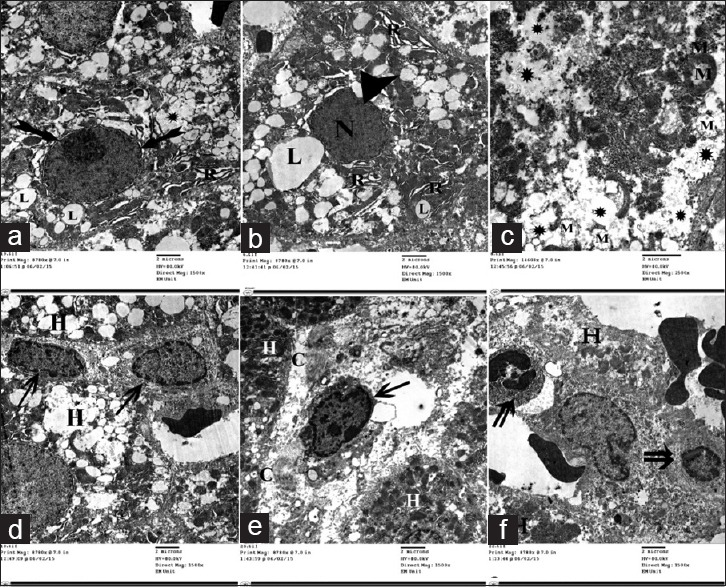 Electron micrographs of liver ultrathin section of Group III showing many lipid droplets with variable size and shape (L) within the cytoplasm of the hepatocytes. (a and b) dilatation of rER (R).(c) Rarefaction of cytoplasm (*) and degenerative changes of mitochondria (M). (a and b) Nuclei of many hepatocytes showing condensed chromatin (N), irregularity, indentation (arrowhead) with widening of the perinuclear space (biffed arrow). (d and e) Many HSCs (arrow), bundles of collagen fibers (C). (f) Inflammatory cells (double arrow) present between the hepatocytes