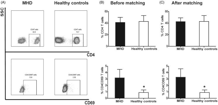 The distribution of antigen CD4 and CD69 between the MHD group and healthy controls. (A) the CD4 T cells gated on CD3 T cells and the expression of CD69 in two groups; (B)-(C) the expression of CD4 and CD4CD69 on T cells before and after propensity score matching. * p