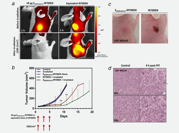 In vivo Z EGFR:03115 –IR700DX‐mediated PIT studies. ( a ) Fluorescence imaging of mice bearing subcutaneous U87‐MGvIII tumors 1 h after injecting 18 μg of Z EGFR:03115 –IR700DX or IR700DX–maleimide (top row). Subsequently, mice were irradiated with an optical dose of 100 J/cm 2 by a red LED and, immediately after, imaged again (bottom row). ( b ) Tumor growth inhibition of the Z EGFR:03115 –IR700DX‐targeted PIT in U87‐MGvIII tumors after administering three doses of 18 µg of the conjugate and irradiating with 100 J/cm 2 at days 1, 3 and 5 in comparison to control groups. Data are presented as mean ± SD ( n = 6 for each group, ** p ≤ 0.01 as assessed by the Kruskal–Wallis test). ( c ) Visual observation of normal tissue damage in the PDT treated mice, while no skin damage was present in the Z EGFR:03115 –IR700DX PIT mice. These were the appearances seen in all mice. ( d ) H E staining of treated and untreated U87‐MGvIIII tumors (arrows indicate regions of tissue necrosis).